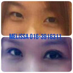 Doule Eyelid Surgery