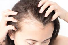 LATISSE Help To Treat Hair Thinning